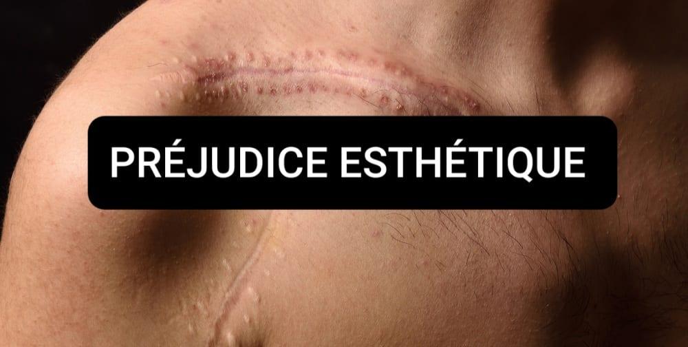 cicatrice préjudice
